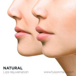 Fusion Perfect Lips
